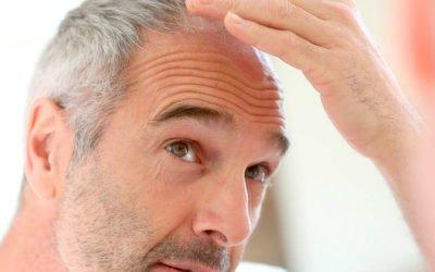 Rediseño de la línea frontal del cabello